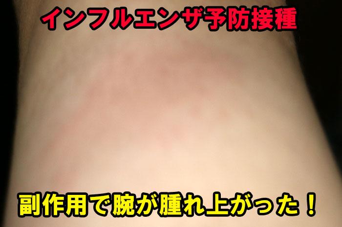 インフルエンザ予防接種で腕が腫れ上がる副作用に苦しんでいます!