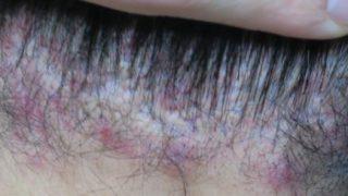 僕が実践している頭皮の痒み・デキモノの治し方